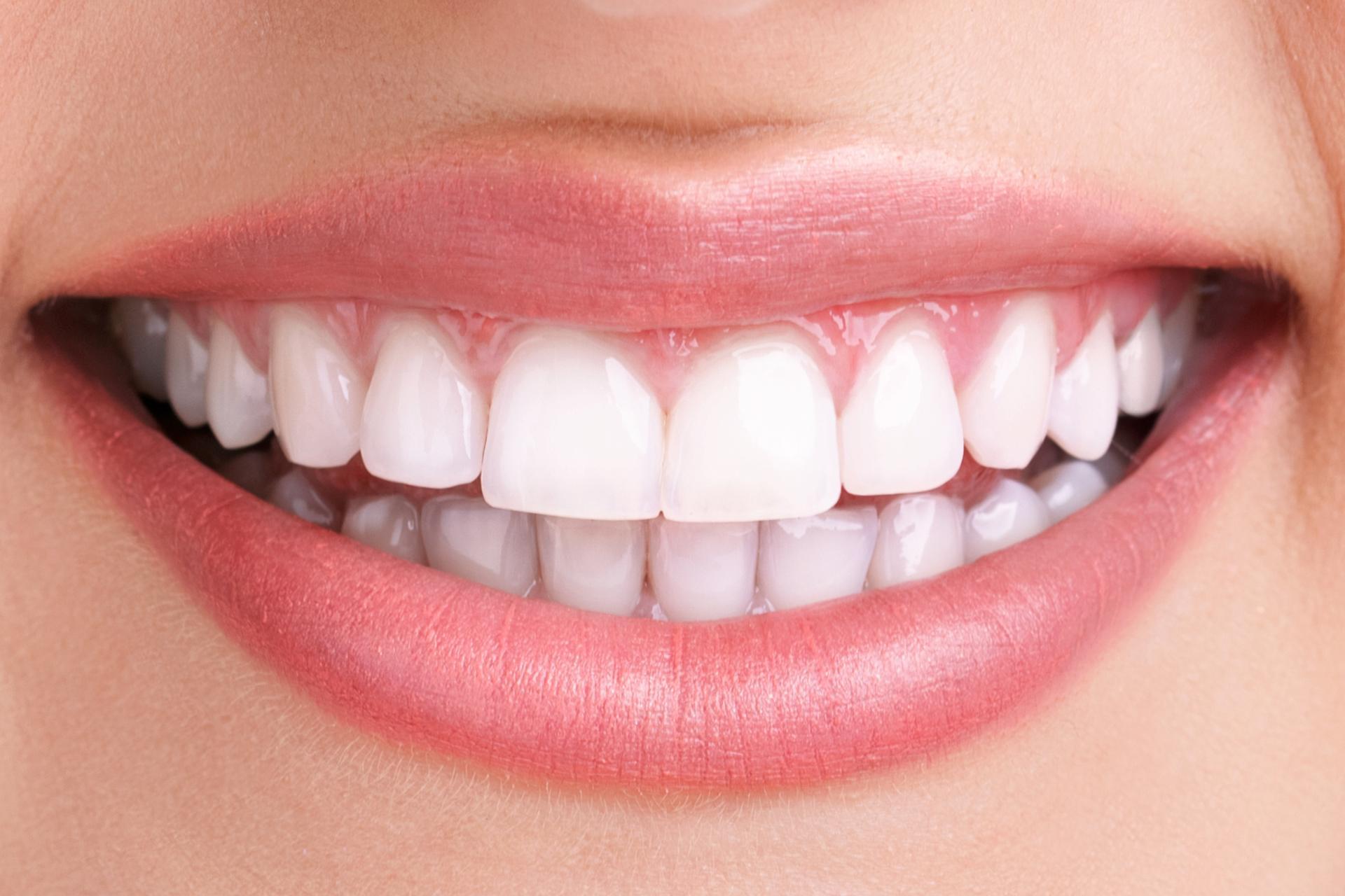 Weisse Zähne